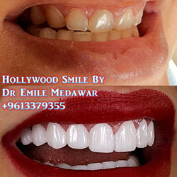 3D Digital Veneers Lebanon