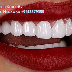 Hollywood Smile Lebanon