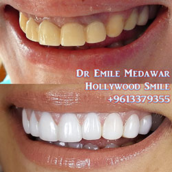 ZIRCONIUM HOLLYWOOD SMILE LEBANON